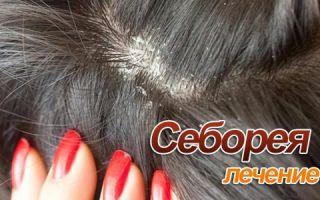Себорея кожи головы и лица: медикаментозное лечение