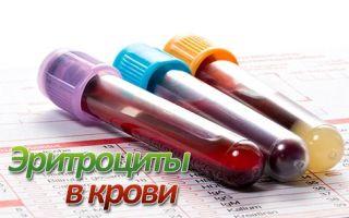 О чем говорит повышенный уровень эритроцитов в крови