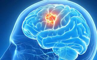 Нейрореабилитация после инсульта