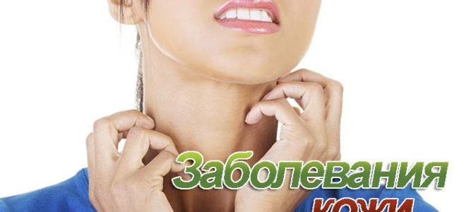 Виды кожных заболеваний с фото и названиями