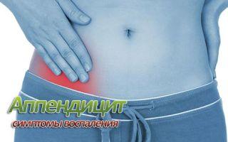 Симптомы аппендицита у женщин: как болит