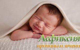 Причины и лечение асфиксии плода и детей