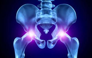 Что такое МРТ суставов и как она проводится