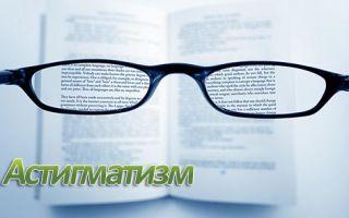 Что такое астигматизм глаз, лечение в домашних условиях
