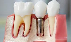 Зубные импланты, мой развернутый отзыв