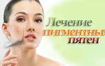 Причины возникновения и лечение пигментных пятен