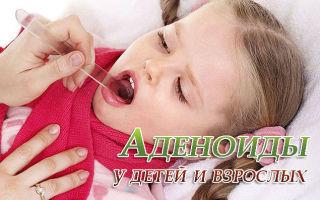 Аденоиды у детей и взрослых, лечение и профилактика