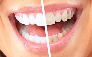 Отбеливание зубов в домашних условиях с помощью комплекса WhiteLight