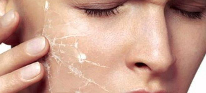 Очень чувствительная кожа: как проявляется, причины, секреты ухода