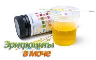 Повышенный уровень эритроцитов в моче у женщин