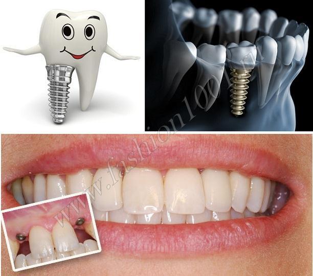 Как выглядят зубные импланты
