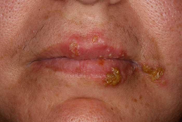 Как выглядит герпес: фото герпес на губах