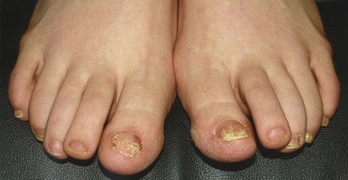 Как выглядит грибок на ногтях ног