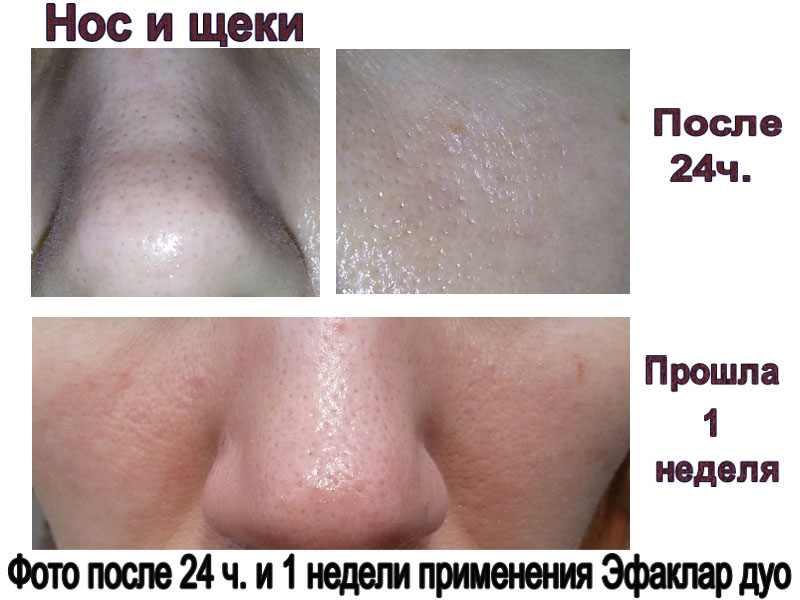 Нос через неделю применения