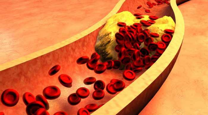 Чем опасен повышенный уровень холестерина