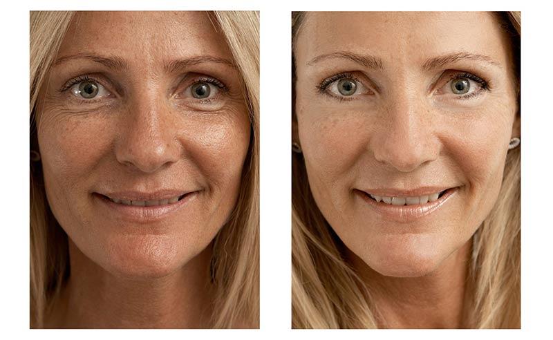На фото до и после биоревитализации