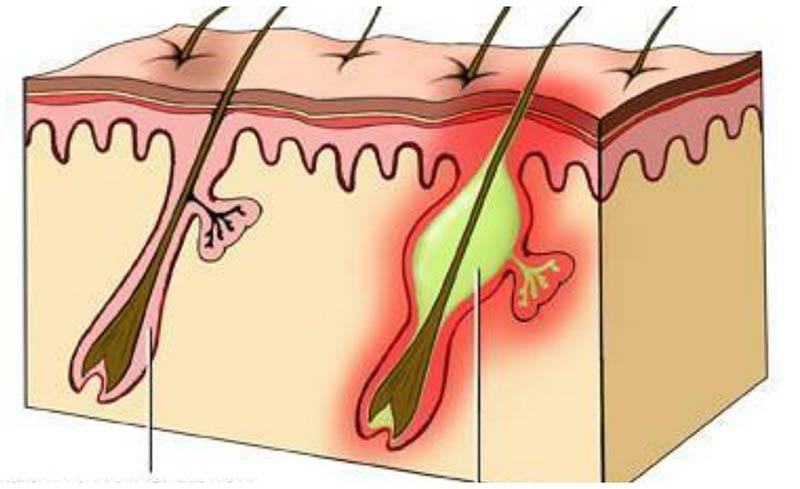 Начальная стадия фурункулеза