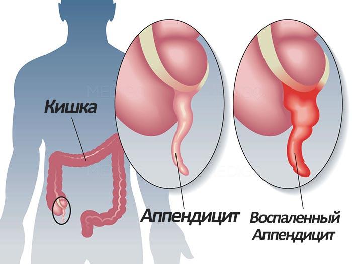 На картинке видно где находится аппендицит