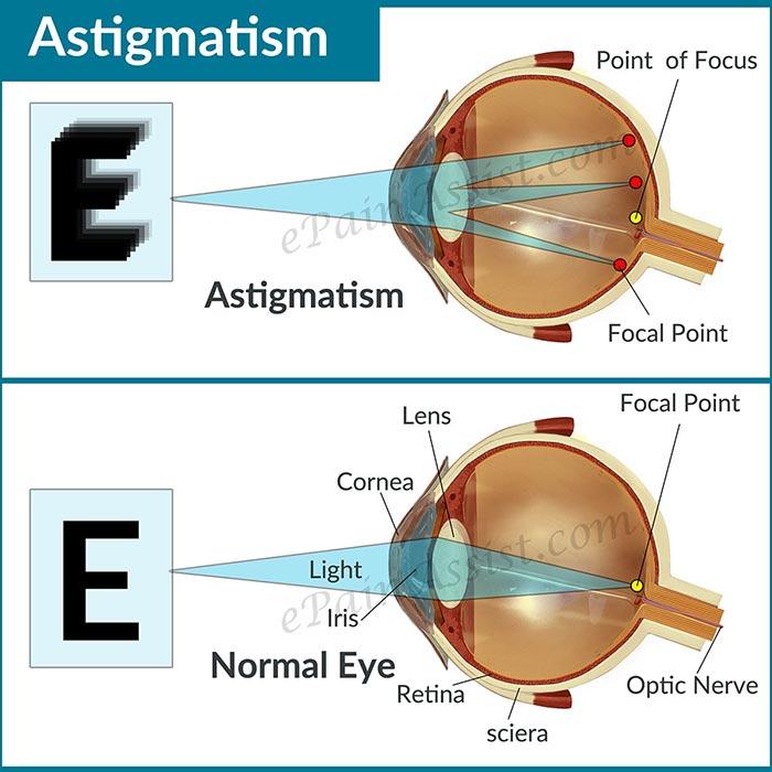 На фото астигматизм глаз