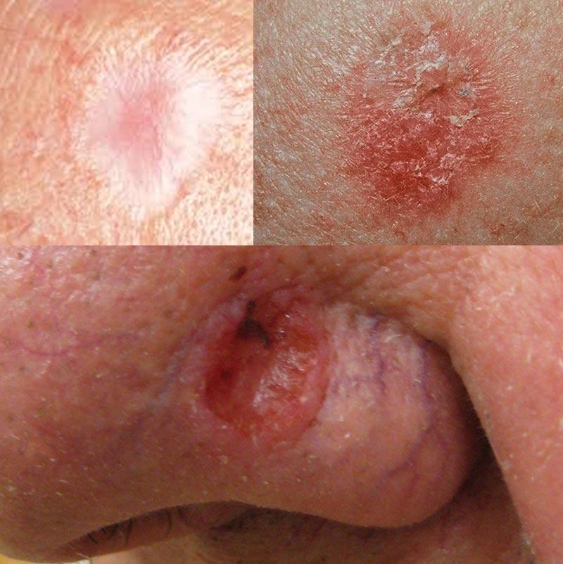Рак кожи - начальная стадия заболевания